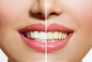 All About Tooth Discolouration